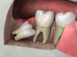 tandpine visdomstand