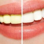 tandblegning - Mange muligheder for at få hvide tænder